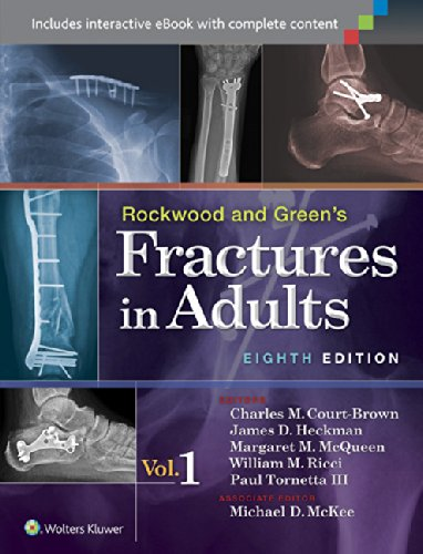 FRACT ADULT 8E VOL 1 SYNTHES