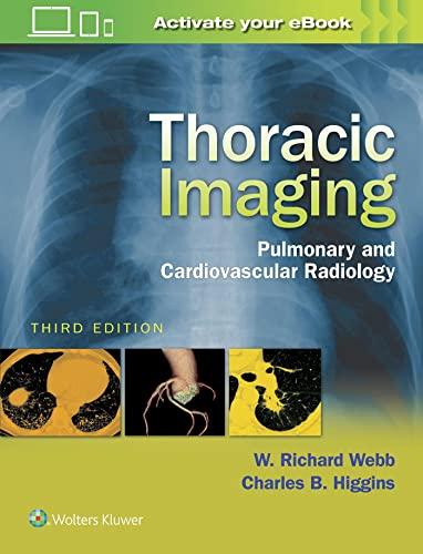 9781496321046: Thoracic Imaging: Pulmonary and Cardiovascular Radiology