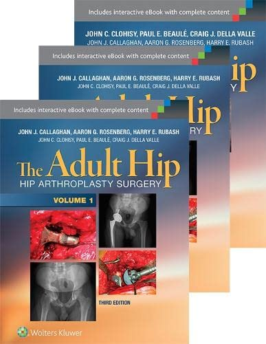 9781496321961: The Adult Hip 3-Volume Package: Arthroplasty and its Alternatives and Hip Preservation Surgery