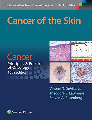 9781496333933: Cancer of the Skin: Cancer: Principles & Practice of Oncology, 10th edition
