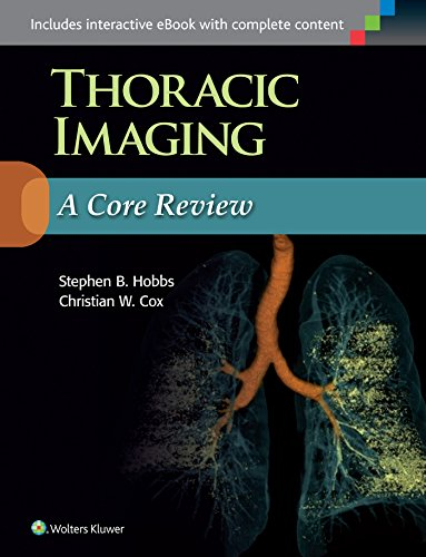 9781496347480: Thoracic Imaging: A Core Review