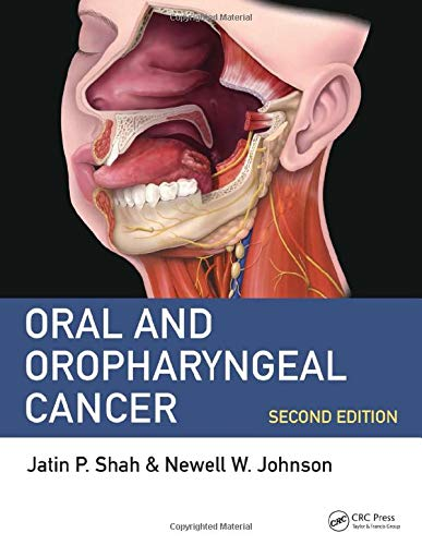 9781498700085: Oral and Oropharyngeal Cancer