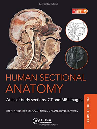 9781498703604: Human Sectional Anatomy: Atlas of Body Sections, CT and MRI Images, Fourth Edition