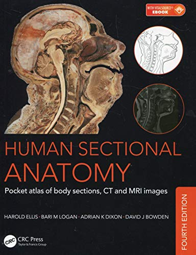 9781498708548: Human Sectional Anatomy: Pocket atlas of body sections, CT and MRI images, Fourth edition