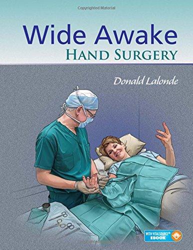 9781498714792: Wide Awake Hand Surgery
