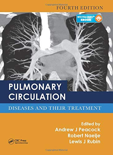 9781498719919: Pulmonary Circulation: Diseases and Their Treatment, Fourth Edition