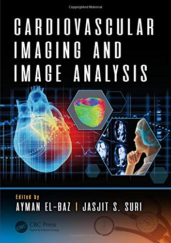diagnostic and therapeutic applications of breast imaging suri jasjit