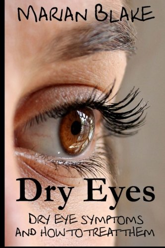 9781499712629: Dry Eyes: Dry Eye Symptoms and how to treat them