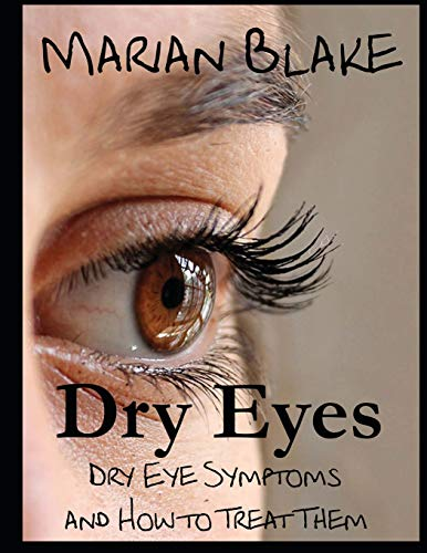 9781500149147: Dry Eyes (Large Print): Dry Eye Symptoms and how to treat them