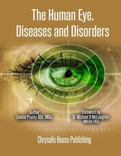 9781500657093: The Human Eye, Diseases and Disorders.