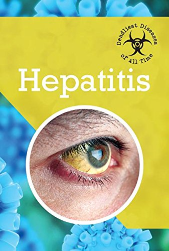 9781502606501: Hepatitis (Deadliest Diseases of All Time)