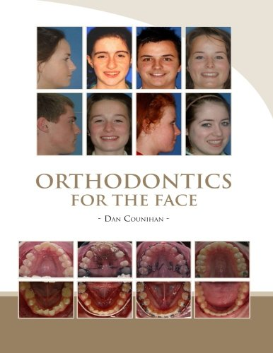 9781503086289: Orthodontics For The Face