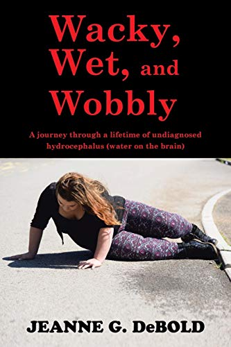 9781504952804: Wacky, Wet, and Wobbly: A journey through a lifetime of undiagnosed hydrocephalus (water on the brain)