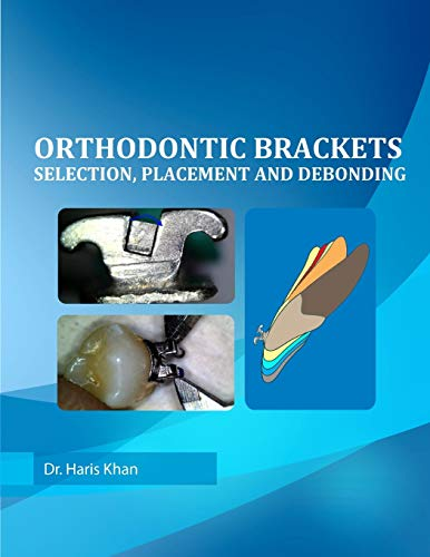 Orthodontic Brackets: Selection,Placement and Debonding: Khan, Dr Haris