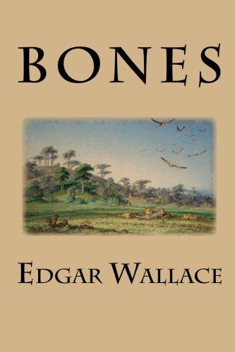 9781511842662: Bones