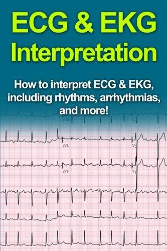 ECG & EKG Interpretation: How to interpret ECG & EKG, including rhythms, arrhythmias, and ...
