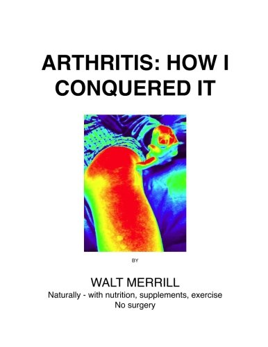 9781515315087: Arthritis: How I Conquered It!: Naturally: with nutrition, supplements, exercise- Not surgery