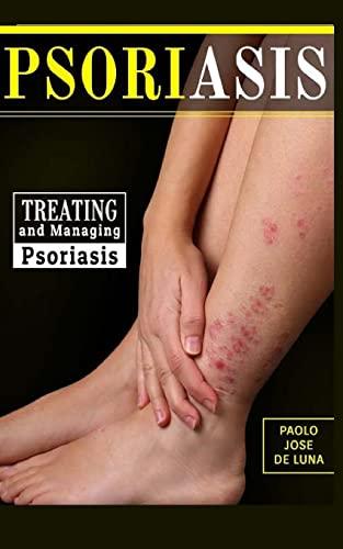 9781517308933: Psoriasis: Treating and Managing Psoriasis