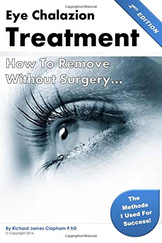 Eye Chalazion: How To Remove Without Surgery: Clapham PhD, Mr