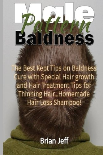 Male Pattern Baldness: The Best Kept Tips On Baldness Cure With Special Hair Growth and Hair Treatme
