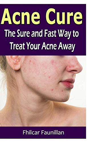 9781530742325: Acne Cure: The Sure and Fast Way to Treat Your Acne Away