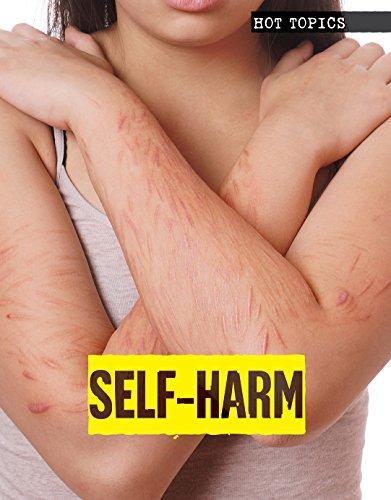 Self-Harm (Hot Topics): Toney Allman