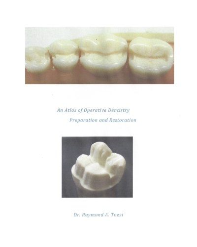 9781534634336: An Atlas of Operative Dentistry Preparation and Restoration