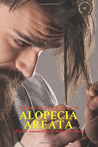 9781537529752: Alopecia Areata: Jewish Answers to a Modern Disease