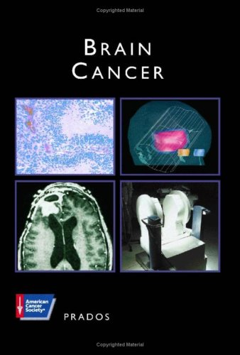 9781550090987: Brain Cancer (Atlas of clinical oncology)