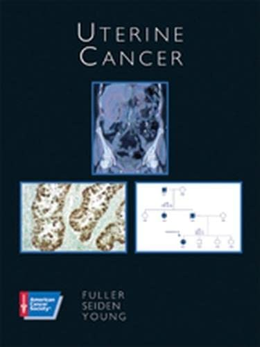 Uterine Cancer (American Cancer Society Atlas of Clinical Oncology) (1550091638) by Arlan F. Fuller Jr.; Robert H. Young; Michael V. Seiden