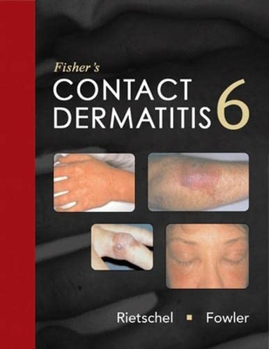 Fisher's Contact Dermatitis, 6e (Rietschel, Fisher's Contact: Rietschel, Robert L.;