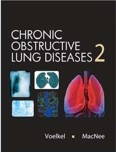 9781550093902: Chronic Obstructive Lung Disease