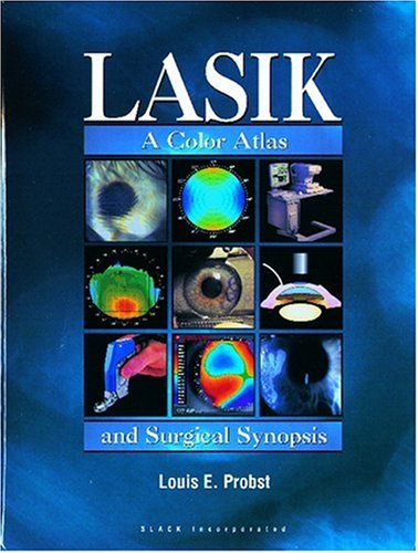 LASIK: A Color Atlas and Surgical Synopsis: Probst MD, Louis E.
