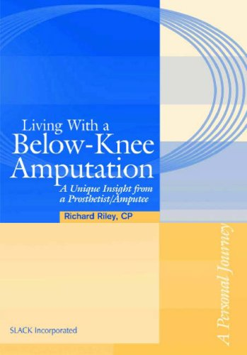 9781556426926: Living with a Below-Knee Amputation: A Unique Insight from a Prosthetist/Amputee