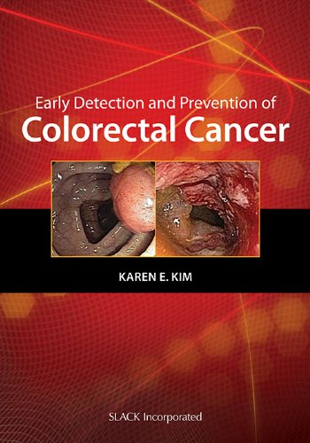 9781556428371: Early Detection and Prevention of Colorectal Cancer (Curbside Consultation)