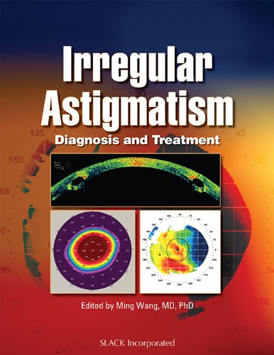 9781556428395: Irregular Astigmatism: Diagnosis and Treatment