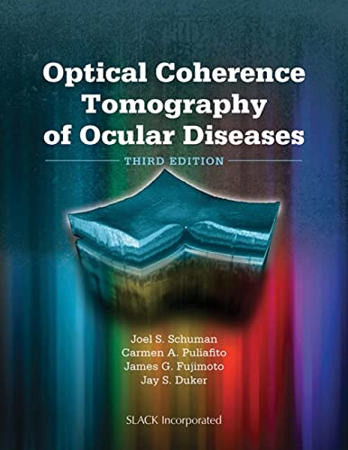 Optical Coherence Tomography of Ocular Diseases: Schuman, Joel S./ Puliafito, Carmen A./ Fujimoto, ...