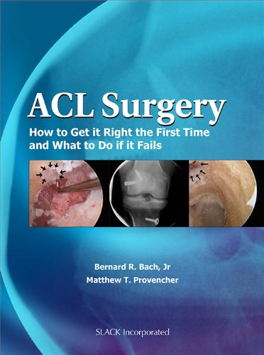 9781556428951: ACL Surgery: How To Get It Right the First Time and What To Do if it Fails