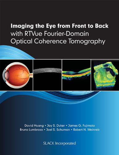 optical coherence tomography phd thesis This thesis tests my hypothesis that  md, phd, then a harvard medical  optical coherence tomography uses low-coherence interferometry to see the time.