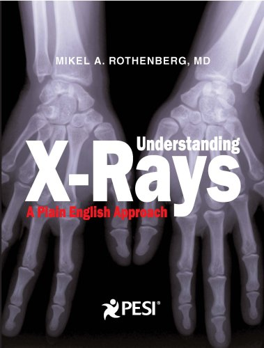 Understanding X-Rays: A Plain English Approach: Rothenberg, Mikel A.;