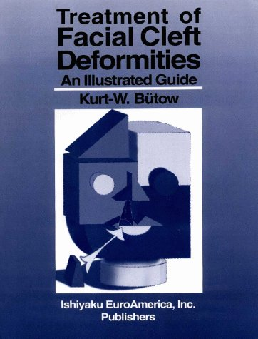 9781563860324: Treatment of Facial Cleft Deformities: An Illustrated Guide