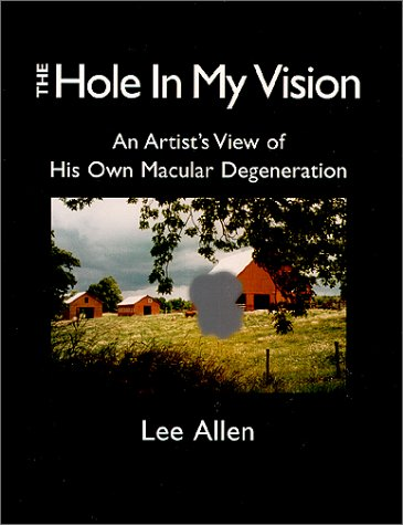 9781572160842: The Hole in My Vision