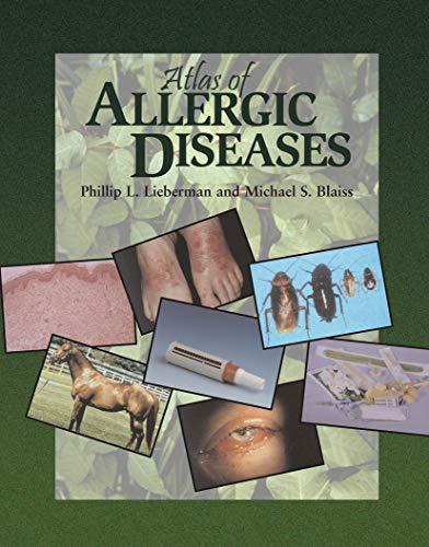 9781573401821: Atlas of Allergic Diseases