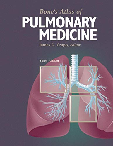 9781573402118: Bone's Atlas of Pulmonary Medicine
