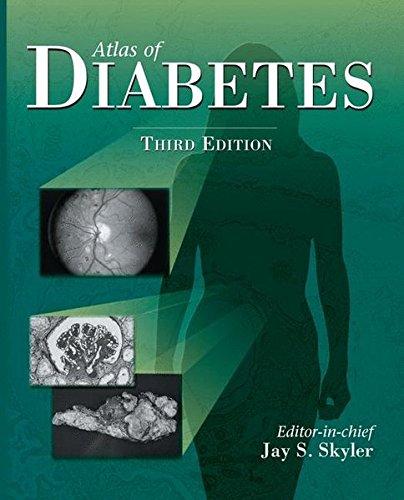 9781573402224: Atlas of Diabetes