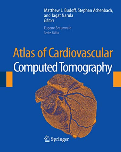 9781573402675: Atlas of Cardiovascular Computed Tomography