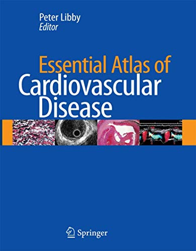 Essential Atlas of Cardiovascular Disease [With CDROM] (Hardcover)