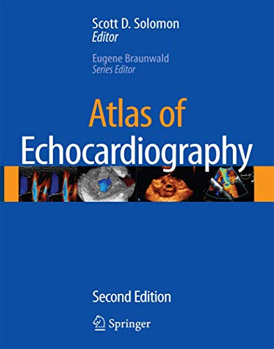 Atlas of Echiocardiography [With CDROM] (Hardcover): I. Carter