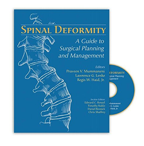 9781576261897: Spinal Deformity: A Guide to Surgical Planning and Management
