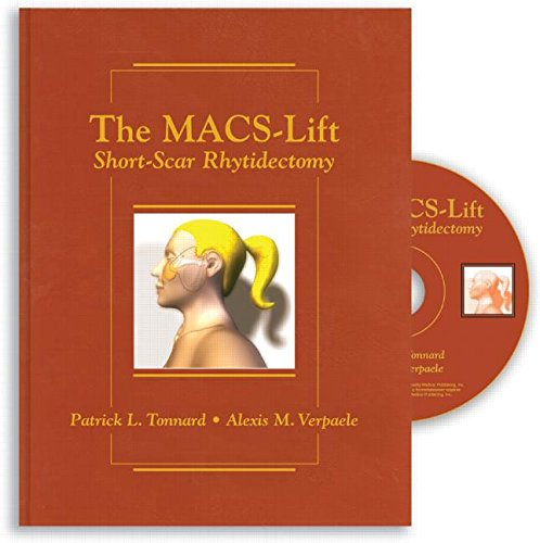 9781576261910: The Macs-lift Short Scar Rhytidectomy